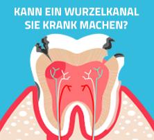 wurzelkanal-zähne