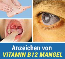 Anzeichen von Vitamin B12 Mangel