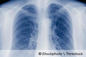 tuberculosis y el dolor de espalda