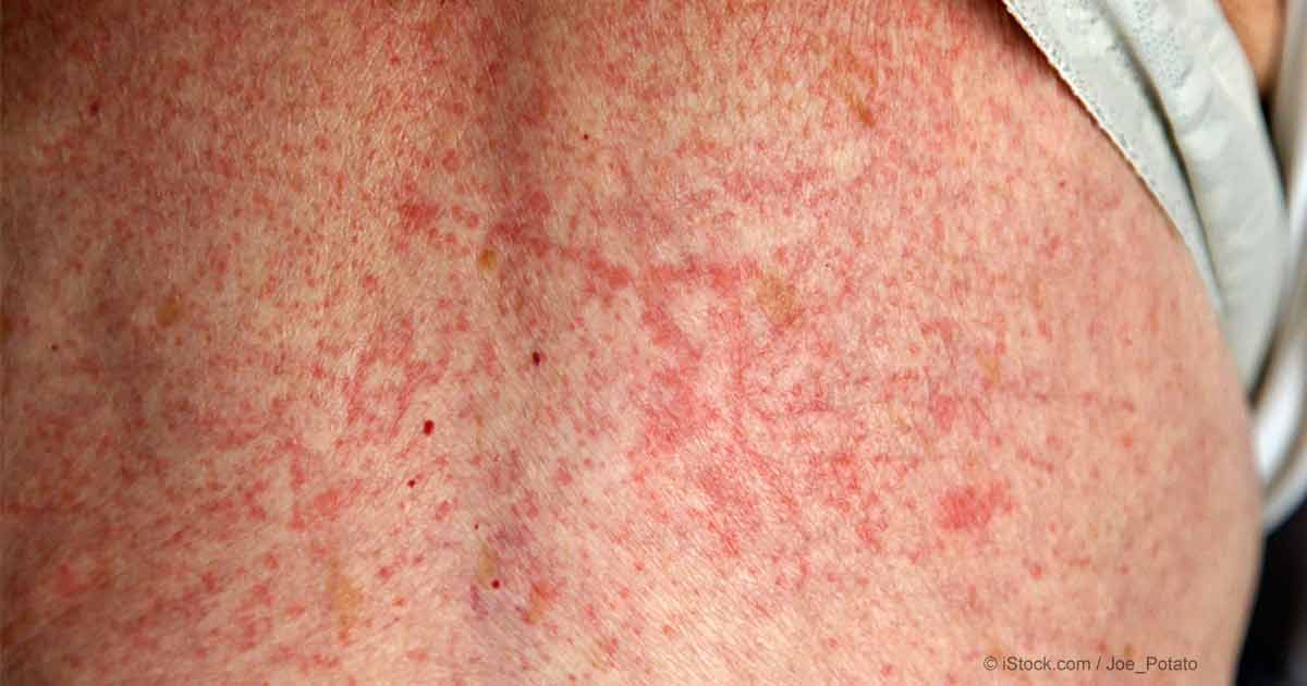 All Natural Remedies For Allergic Rash
