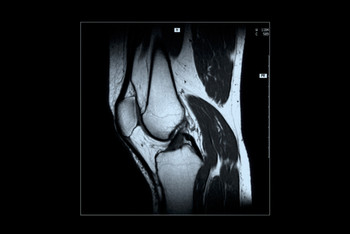 Surgery Does Little for Arthritic Knees