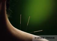 Acupuncture Confirmed Helpful for Chronic Pain