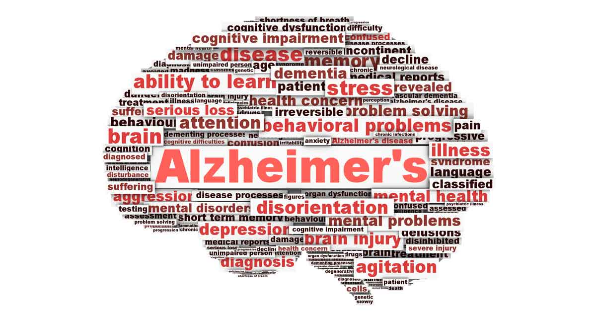 Image result for alzheimers
