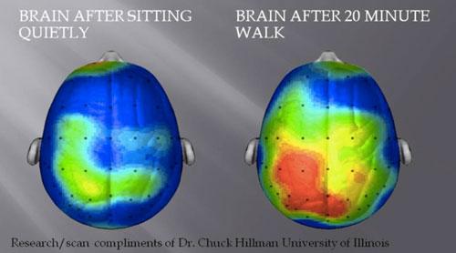 두뇌 스캔