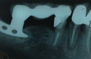 dente que recebeu o tratamento de canal