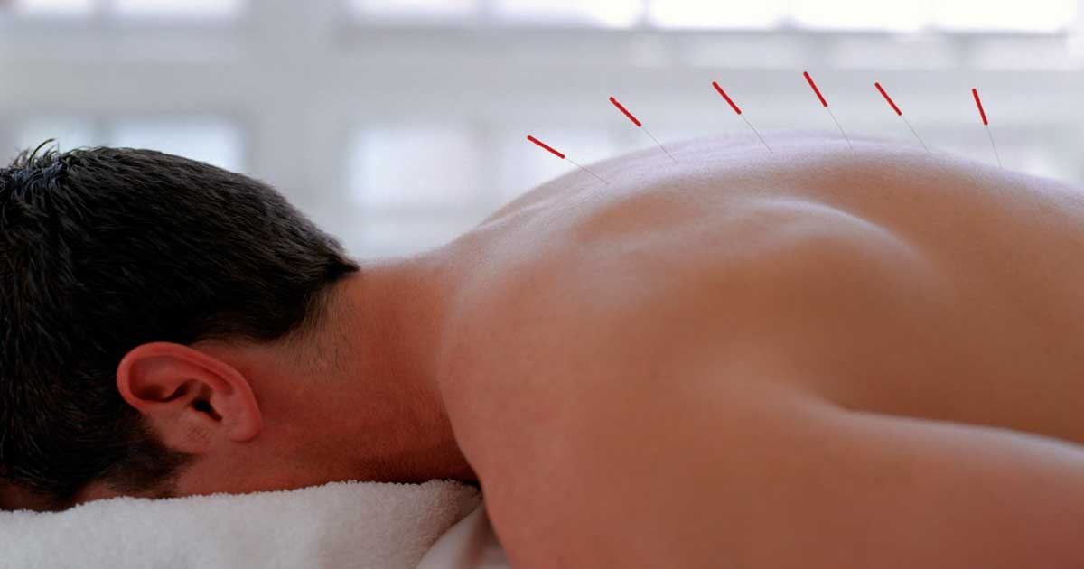 Acupuncture May Help Relieve Chronic Stress