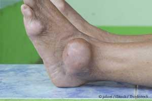 natural remedies for uric acid problems sudden ankle pain gout foods that contain high uric acid levels