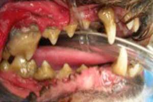 Complete Dental Filling