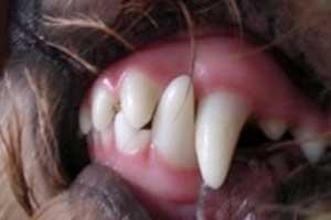 Normal Bite After 8 Weeks