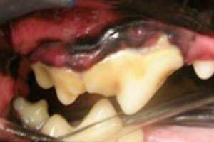 Gingivitis and Gum Recession