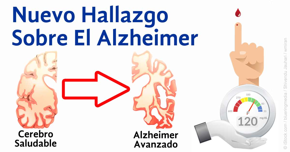 Resultado de imagen para el exceso de azucar a la larga produce alzheimer