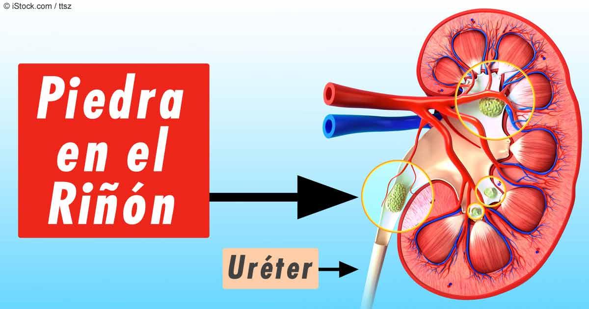 remedios para sanar la gota comidas que dan acido urico o que provoca acido urico alto
