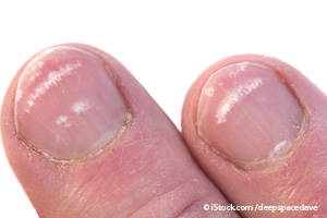 Things Your Nails Can Reveal About Your Health----On Fow24news.com(Health Article)