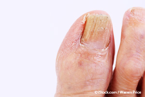 10 Nail Symptoms And What They Mean For Your Health