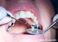 Mercury Fillings: Consumers Contacting Aetna to Change Insurance