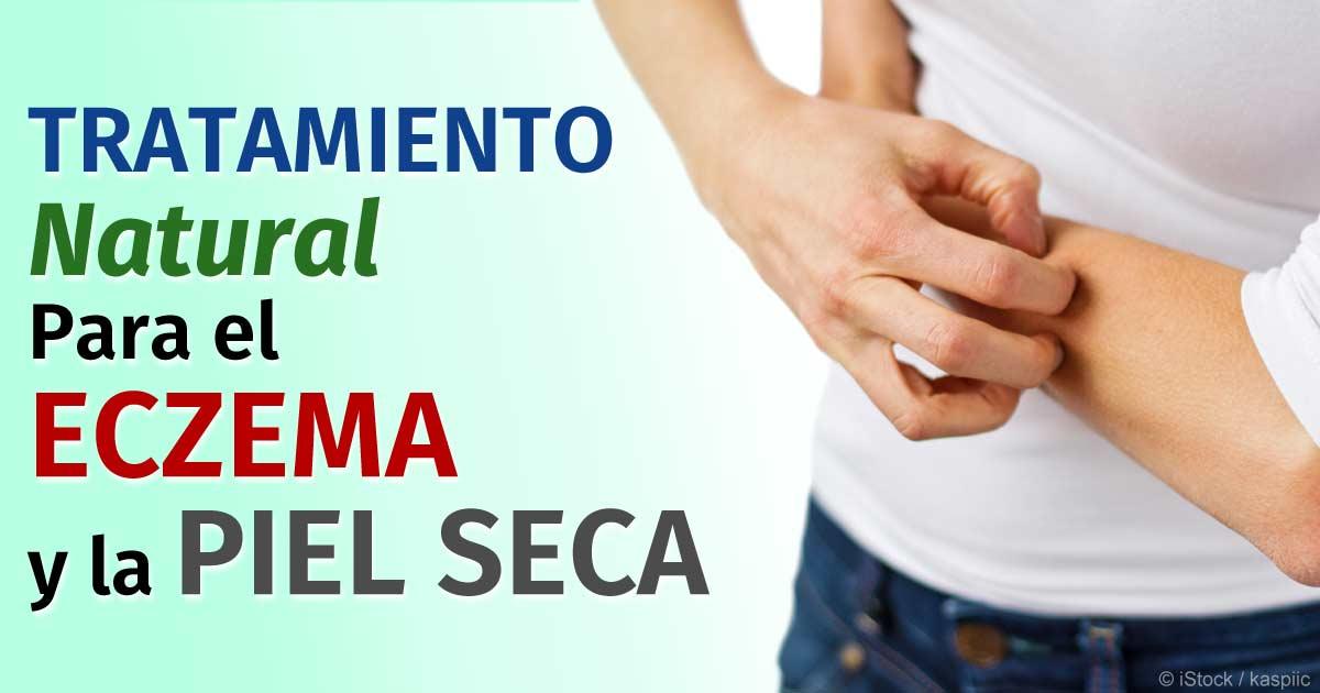 Tratamiento para el eczema facial