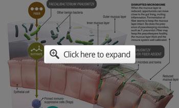 Treg Cells More Fiber