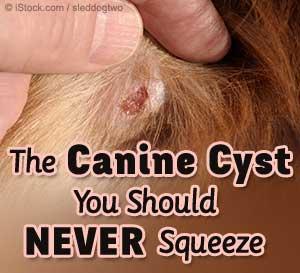 sebaceous cysts