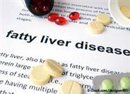 What Is Fatty Liver Disease