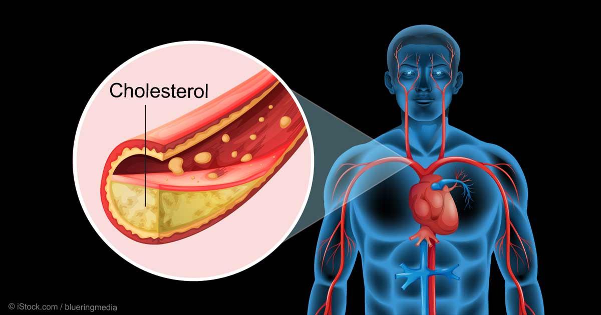 high cholesterol medications list