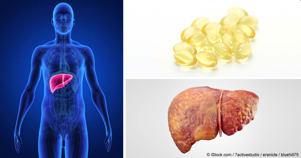 El consumo excesivo de fructosa es la causa principal de la enfermedad del hígado graso no alcohólico y si la elimina de su alimentación puede prevenir la enfermedad. http://articulos.mercola.com/sitios/articulos/archivo/2015/11/12/enfermedad-del-higado-graso-no-alcoholico.aspx