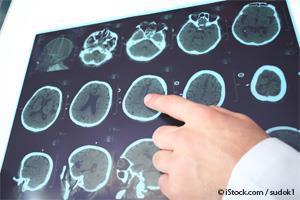 Vitamina B12 Cerebro