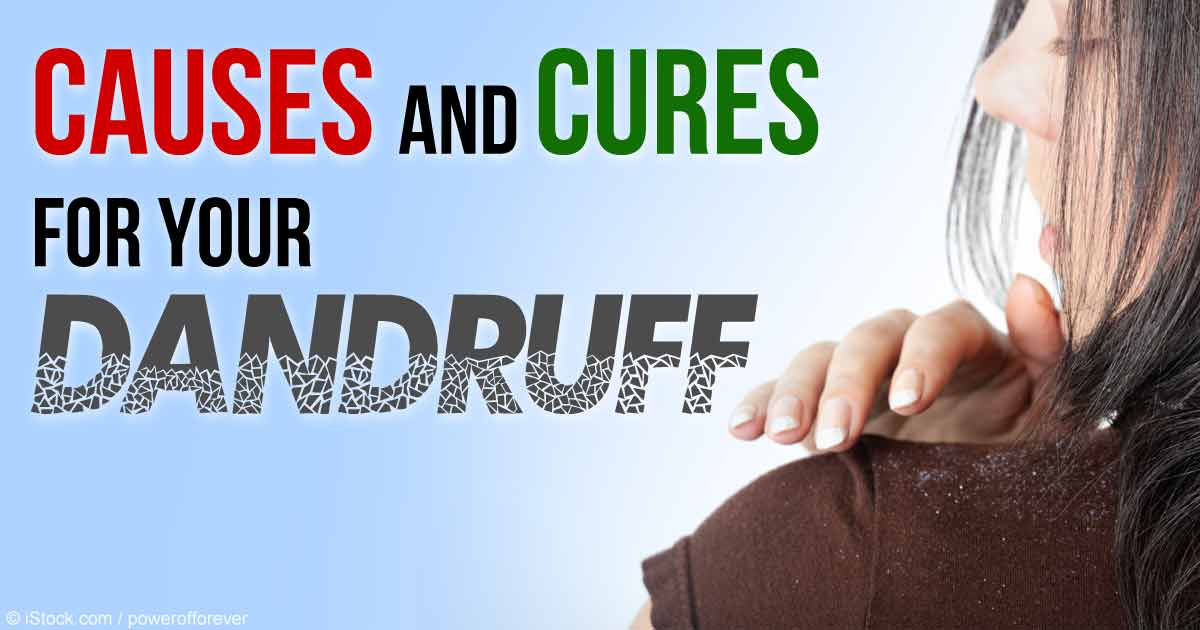 Vitamin deficiency cause dandruff
