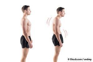 Postura Natural