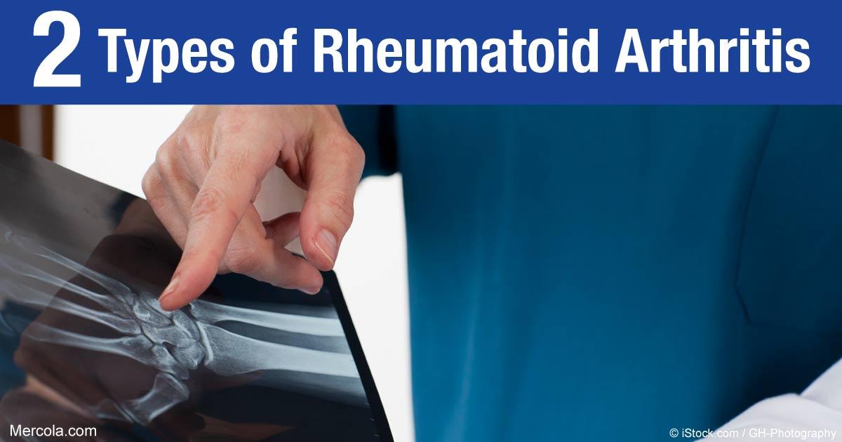 What Are the Types of Rheumatoid Arthritis?