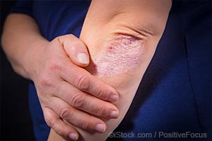 湿疹和银屑病