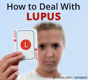 how to deal with lupus