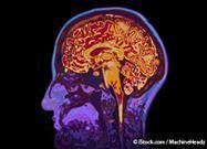 ¿Pérdida de la Memoria o Demencia?