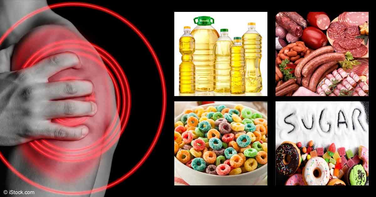 Los 9 Alimentos Inflamatorios Que Debe Evitar Como la Plaga