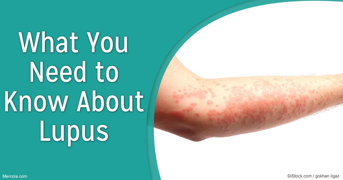lupus-need-to-know-fb, Skeleton