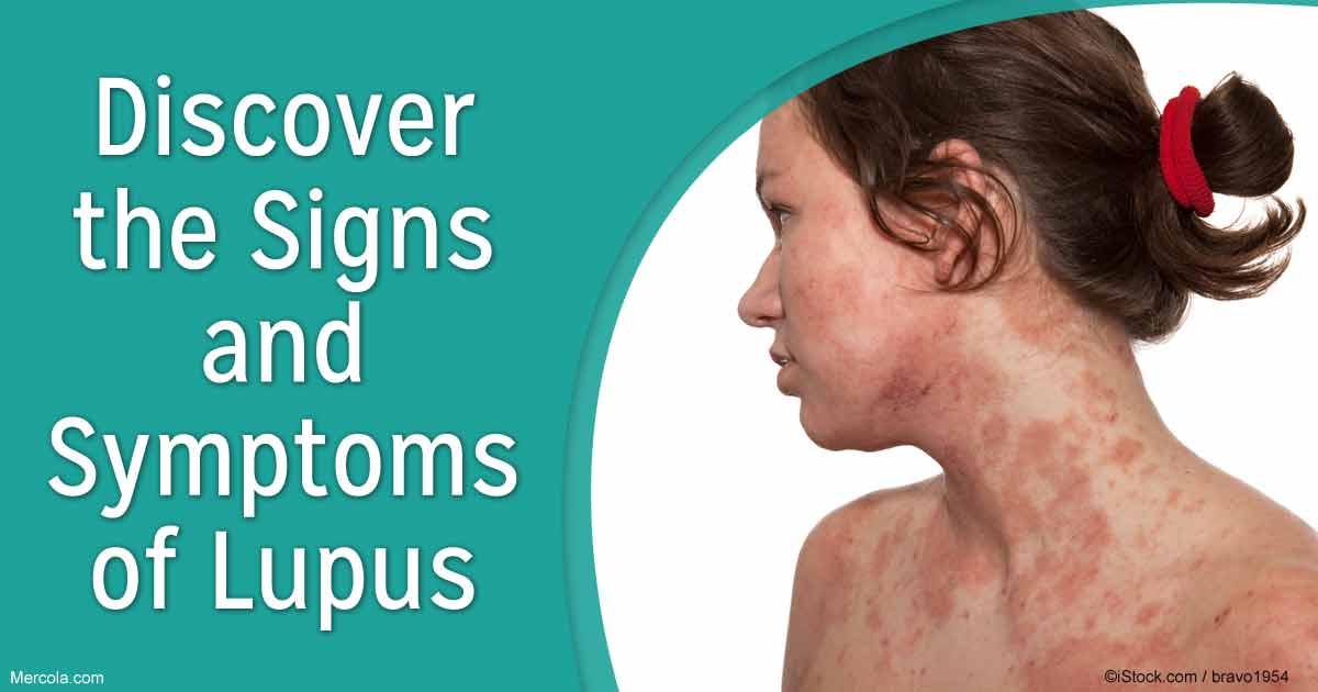 lupus - photo #20