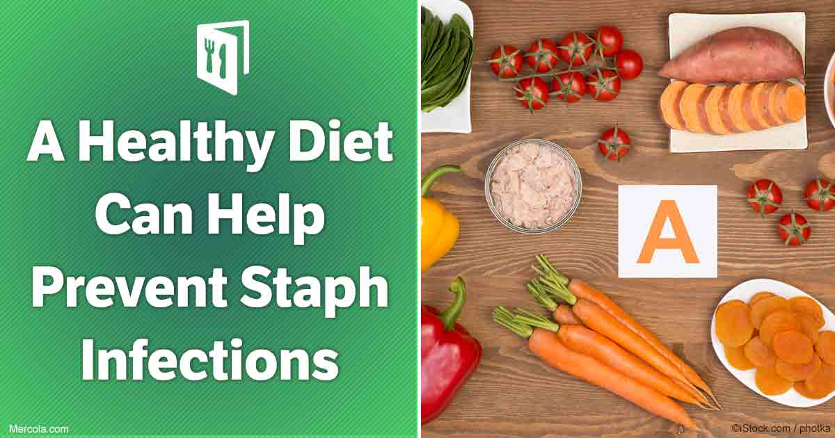 benefits of a healthy diet essay Before i went to the website i didn't expect to see many healthy benefits to eating practicing healthy diet can lead to healthy lifestyle essay.