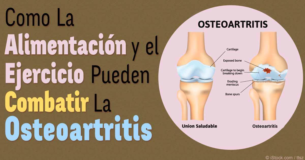 Resultado de imagen para imagenes de personas con afeccion de osteoartritis