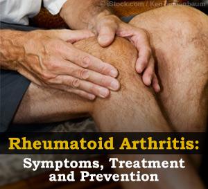 rheumatoid arthritis protocol