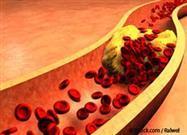 Consejos para Bajar el Colesterol Naturalmente