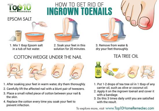 home remedies of ingrown toenails