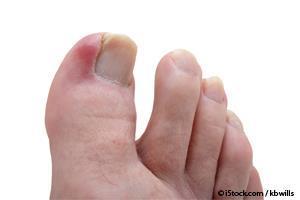 vinagre para las uñas encarnadas