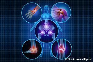 Omega 3 Artritis