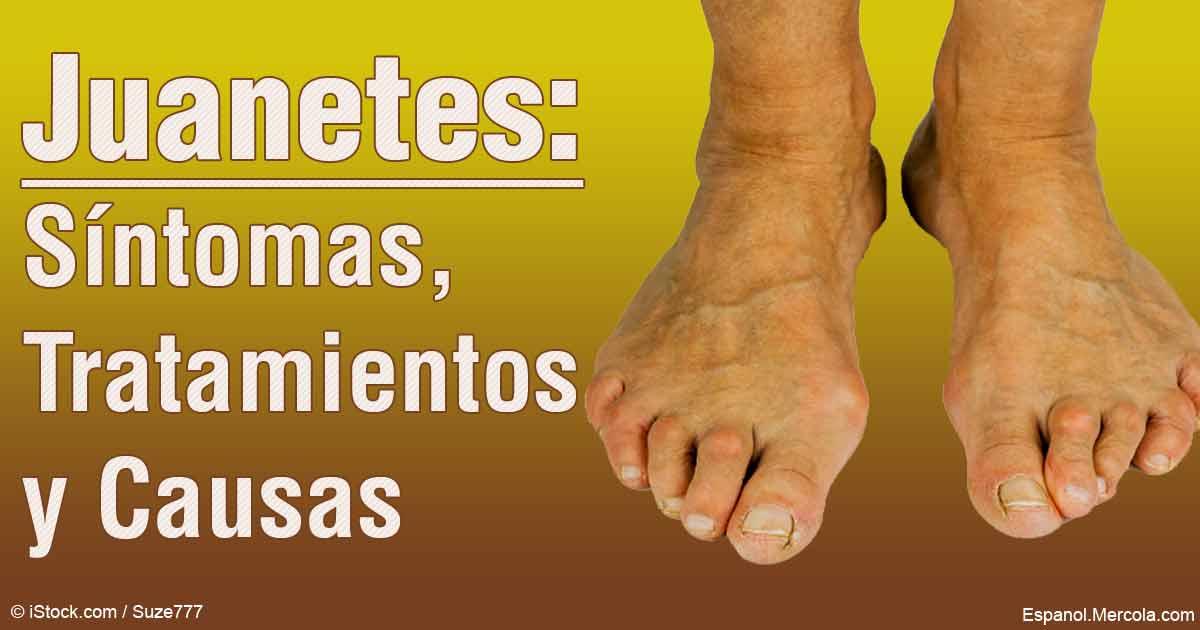 Juanetes: Causas, Síntomas y Tratamiento