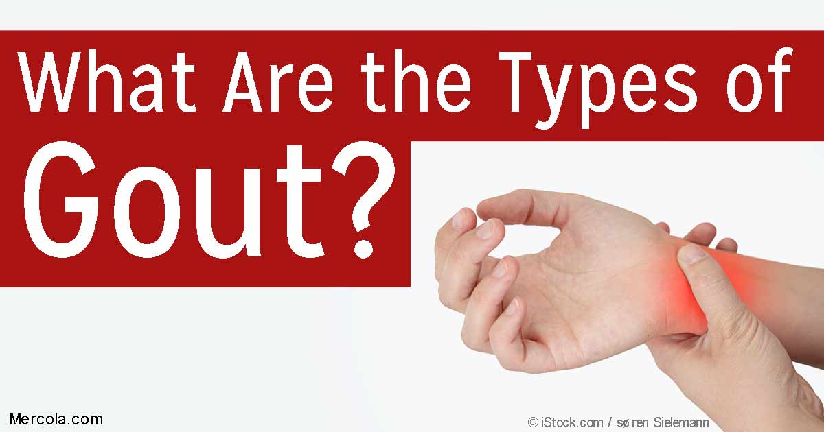 What Are The Types Of Gout