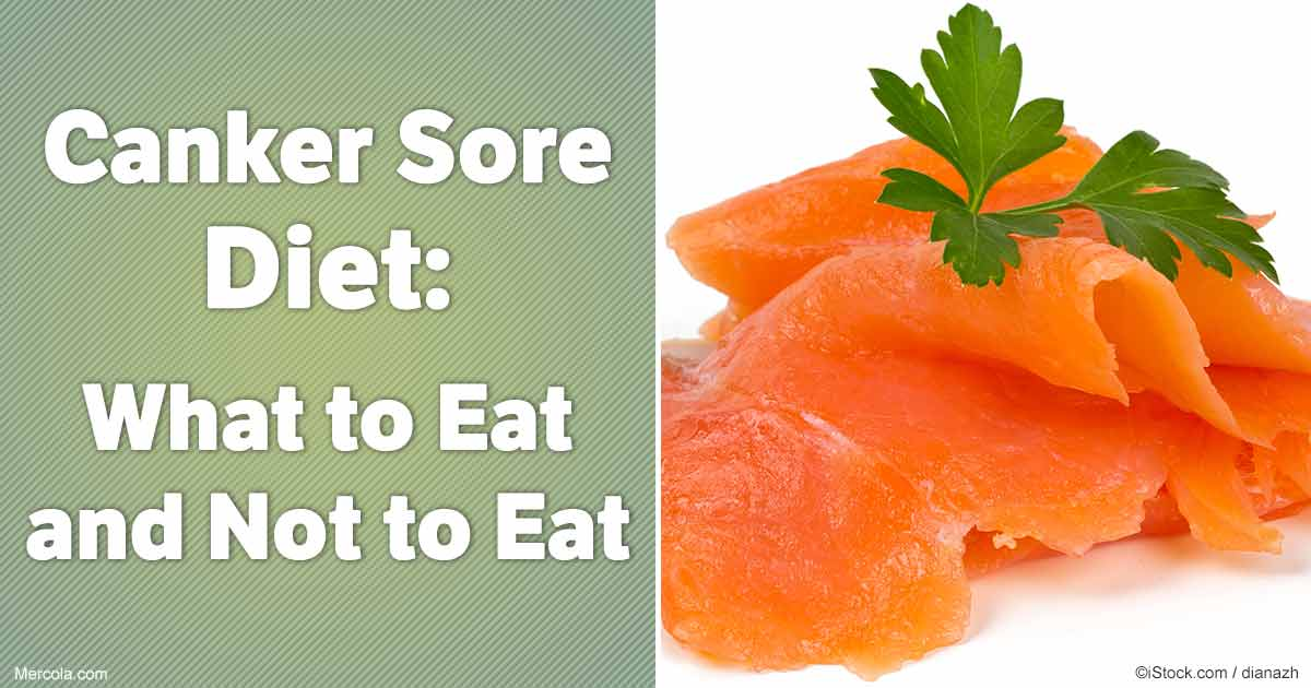 Canker Sore Diet: What to Eat and Not to Eat