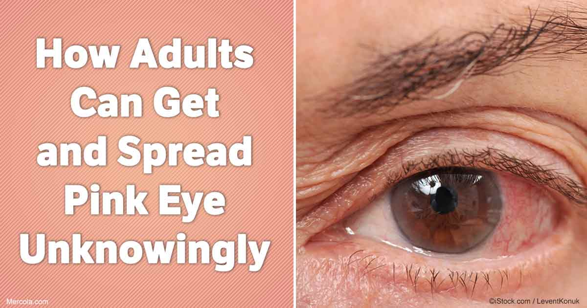 pink eye symptoms adults