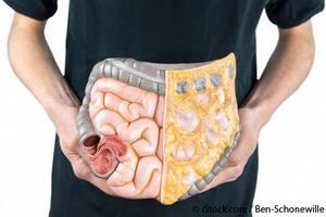 Rise in Inflammatory Bowel Disease