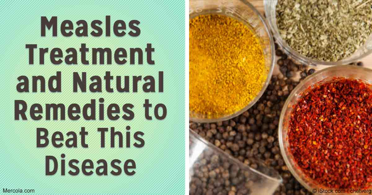 Measles Treatment Natural Remedies