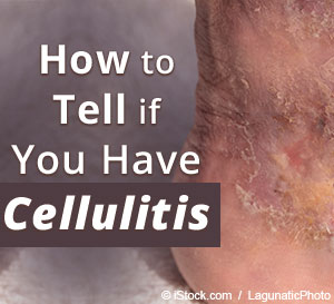cellulitis signs and symptoms