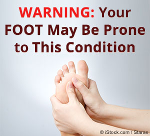 foot with plantar fasciitis